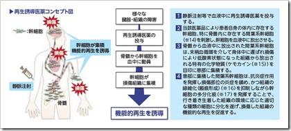 ステムリム(4599)IPO再生誘導医薬コンセプト