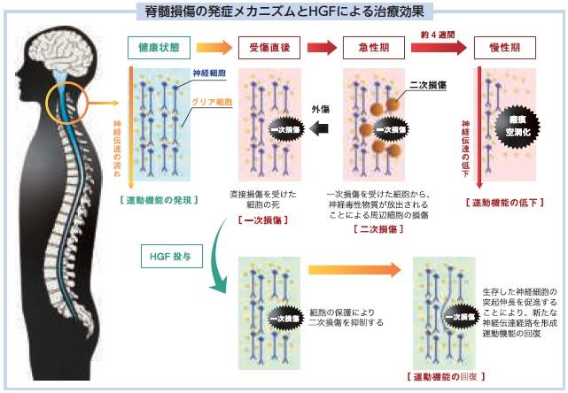 クリングルファーマ(4884)IPOHGF治療効果