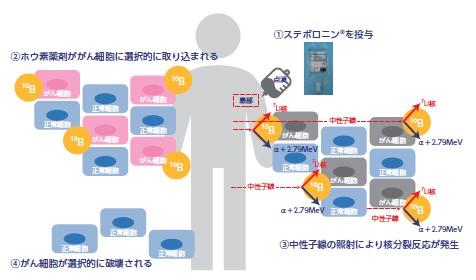 ステラファーマ(4888)IPOBNCT治療イメージ